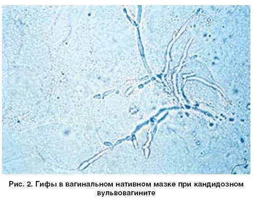 Трихомонады в мазке: что это такое, анализ крови, rw и мазка на флору