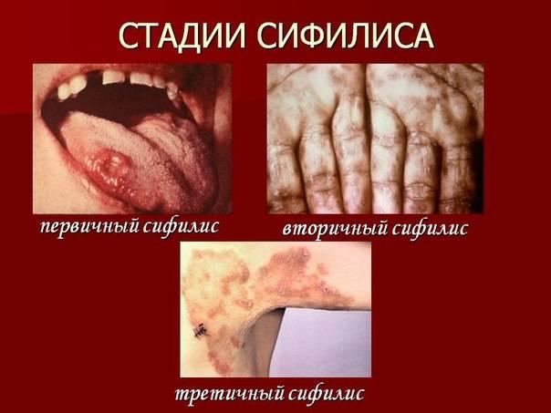 Как проявляется сифилис и через сколько (фото)
