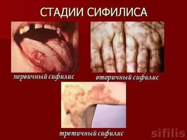 Триппер: что это такое, симптомы, первые признаки и лечение