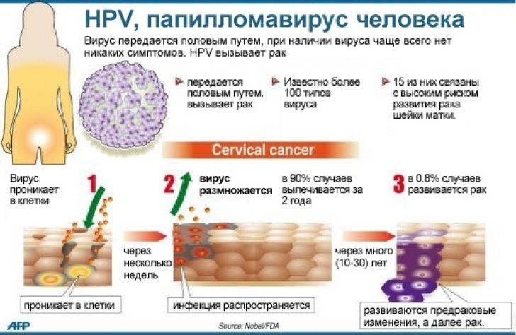 ВПЧ 16 типа у женщин: что это такое, лечение и фото