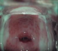Фото симптомов трихомониаза у женщин