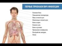 Фото схема симптомов ВИЧ инфекции у женщин