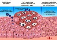 Схема проявления ВПЧ у женщин (вирус папилломы человека)