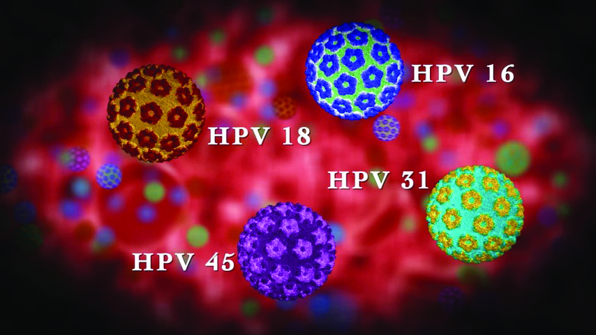 ВПЧ онкогенного риска