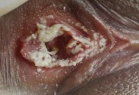Фото проявления молочницы у беременных
