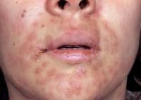 Фото проявлений симптомов сифилиса