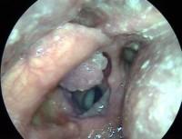 Фото симптомов ВПЧ (вируса папилломы человека) 16 типа у женщин