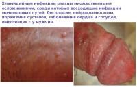 Фотография проявления хламидиоза