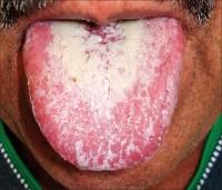 Фотография молочницы во рту