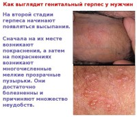 Фотография проявления симптомов заболевания