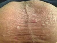 Фото проявления кожных высыпаний при сифилисе