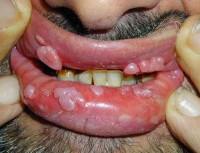 признаки ВПЧ во рту