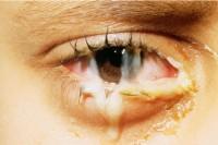 выделения из глаз при гонорейном конъюнктивите
