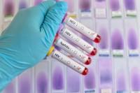анализа на ВИЧ, сифилис, гепатиты