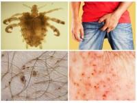 Половые инфекции в виде сыпи thumbnail