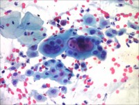микроскопия женского урогенитального мазка