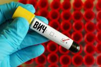 ПЦР анализ крови на ВИЧ