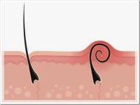 рост волоса под кожей