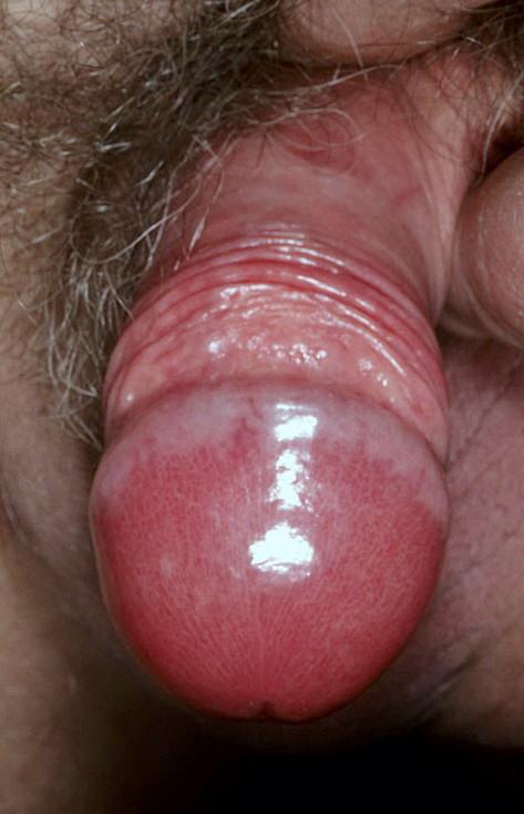 красные пятна на головке после секса