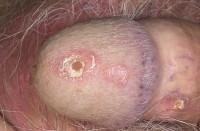 псориаз или себорейный дерматит?