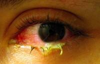 гонорея глаз