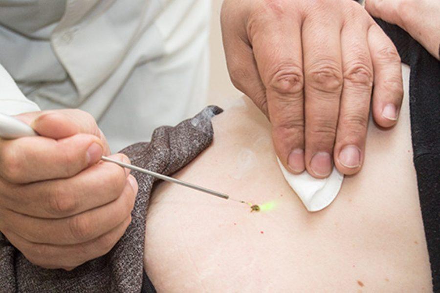 дерматовенеролог удаляет новообразования