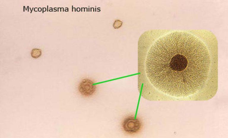 бактерия микоплазма