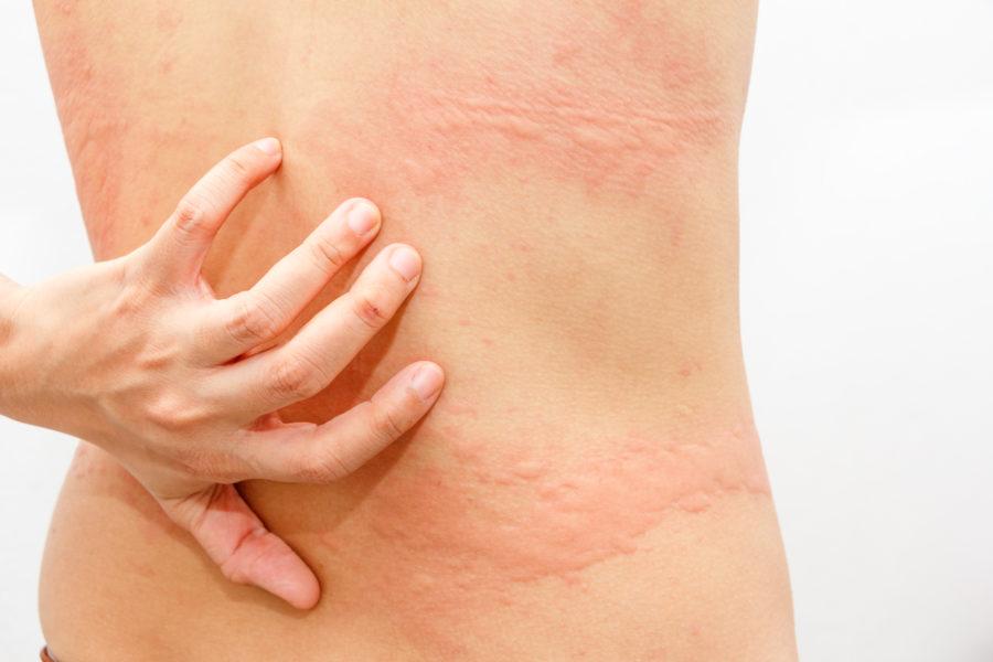 Аллергия на коже тела