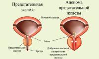 болезненное мочеиспускание при аденоме