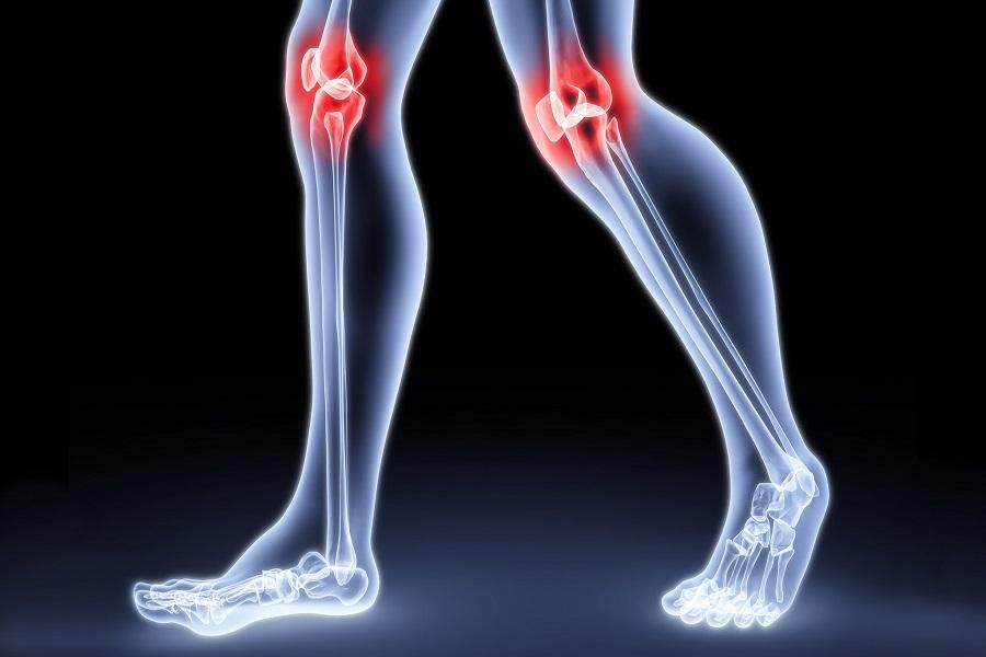 артрит – осложнение ЗППП