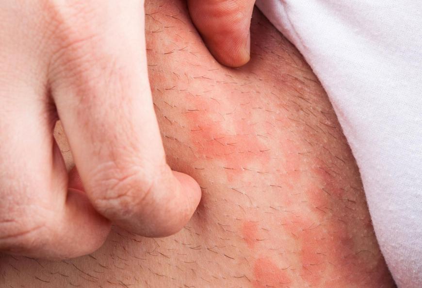 сыпь в паху при аллергии