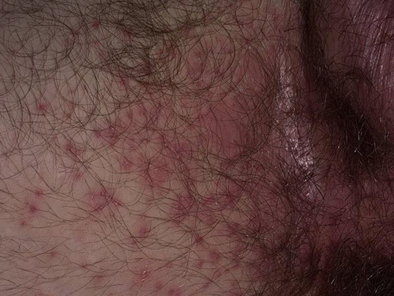 кандидоз складок кожи в паху