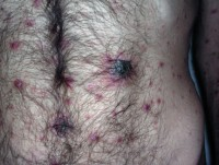 сыпь при вторичном сифилисе