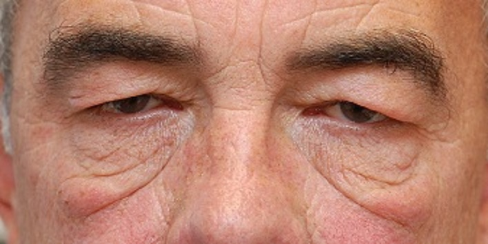 отеки при сифилисе по глазами