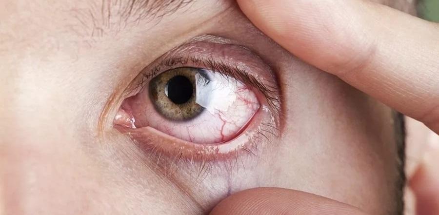 поражение глаз при сифилисе