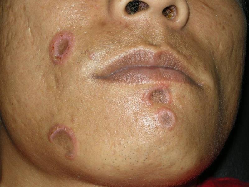 рубцы при сифилисе