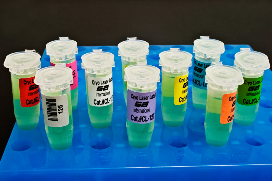 анализы на цитомегаловирус