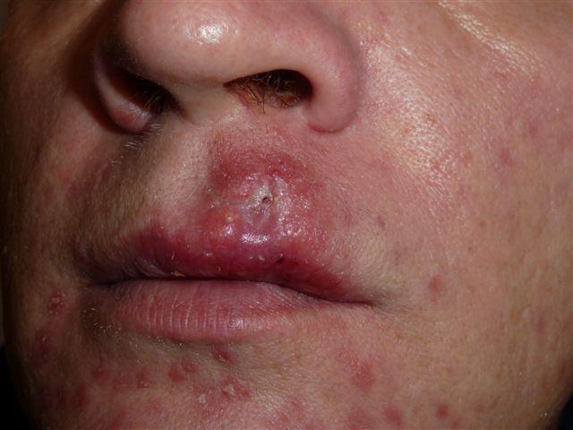 симптомы сифилиса на лице
