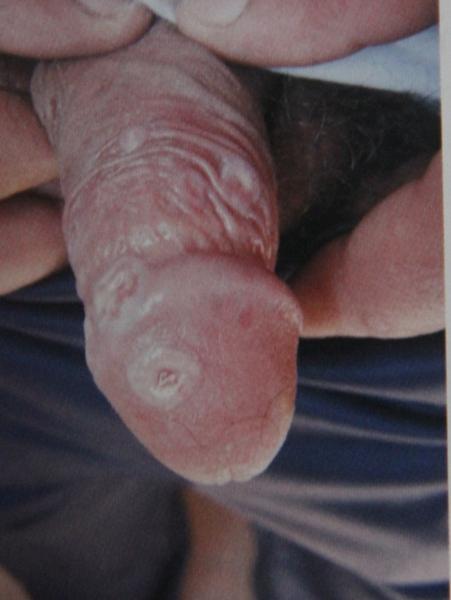 белые пятна на члене при сифилисе