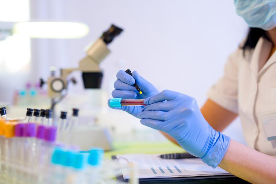 лабораторная диагностика ЗППП