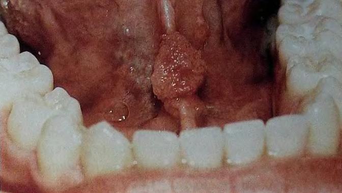 кондиломы под языком
