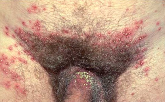 воспаление фолликул в паху у мужчины