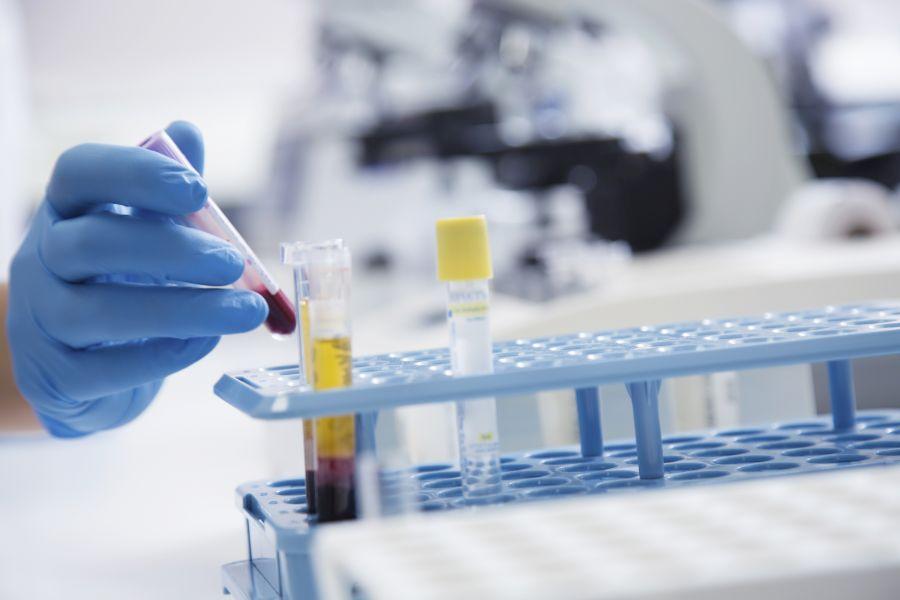 анализы крови на сифилис в лаборатории