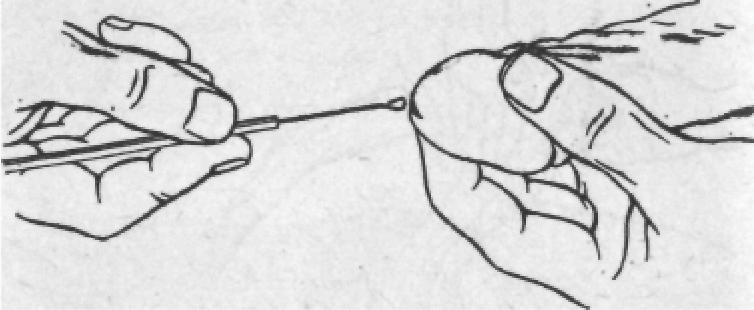 забор анализа из уретры у мужчин