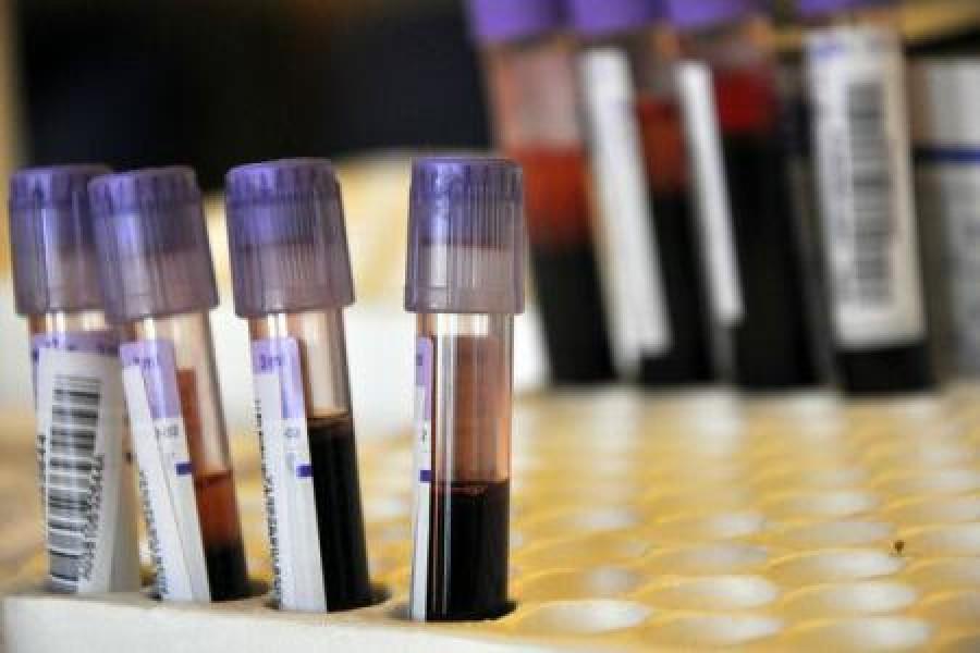 сдать анализ крови на ИППП