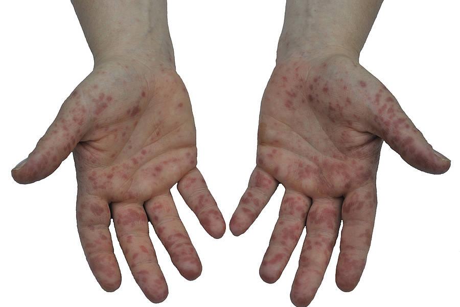 высыпания при сифилисе на руках