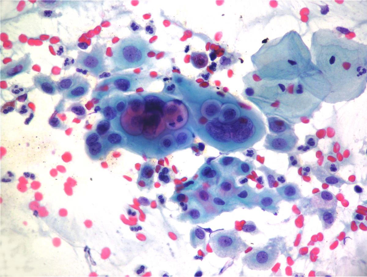 лейкоциты в мазке уретры