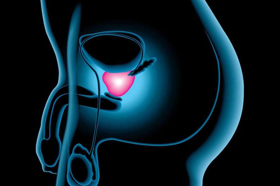 cancer_de_prostata
